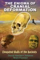 19 – The Enigma of Cranial Deformation